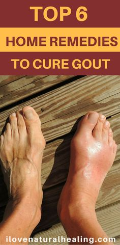"""Gout is caused by too much uric acid in the blood. Most of the time, having too much uric acid isn't harmful. Many people with high levels in their blood never get gout. But when uric acid levels in your blood are too high, the uric acid may form hard crystals in your joints."" Here are 6 home remedies to cure gout naturally."