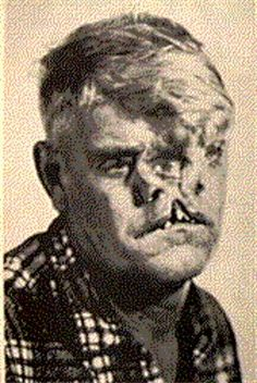 """Man with three faces William """"Bill"""" Durks was born on April 17, 1913, in Jasper, Alabama to normal parents, and had four normal siblings. As Ward Hall wrote in My Very Unusual Friends (1991), Bill """"looked like he had been hit in the face with an axe""""."""
