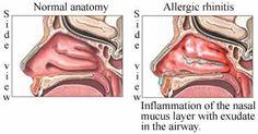 Conditions InDepth: Allergic Rhinitis - Health - Beliefnet.com  - Medications for Allergic Rhinitis: http://health.cvs.com/GetContent.aspx?token=f75979d3-9c7c-4b16-af56-3e122a3f19e3&chunkiid=20284