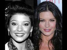 Catherine Zeta Jones Plastic Surgery - Before and After Pics