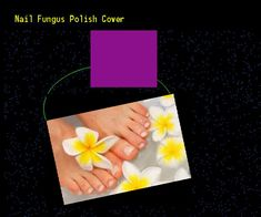 Nail fungus polish cover - Nail Fungus Remedy. You have nothing to lose! Visit Site Now