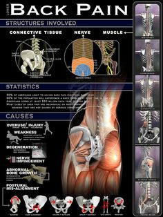 Lower Back Pain Infographic by A Health Blog, via Flickr