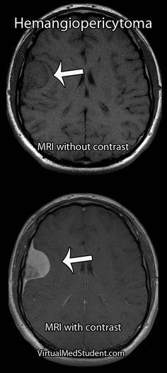 VirtualMedStudent.com    Intracranial Hemangiopericytoma Radiology Imaging, Medical Imaging, Radiologist Technician, Mri Brain, Medical Office Design, Medical Pictures, Medical Coding, Radios, Nursing