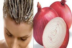 Hair mask with onion is above all a powerful nutrition for the scalp with minerals and vitamins that are in high amount in this unique product. The mask with onion hydrates, stops hair loss, improves the structure and accelerates the growth of hair. Prevent Hair Loss, Stop Hair Loss, Onion For Hair, Onion Juice, Hair Issues, Hair Loss Remedies, Tips Belleza, Shiny Hair, Glossy Hair