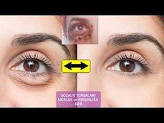 ΠΡΟΣΘΈΣΤΕ ΣΤΟΝ ΚΑΦΈ ΚΑΙ ΑΦΉΣΤΕ ΓΙΑ 1 ΗΜΈΡΑ, ΘΑ ΕΚΠΛΑΓΕΊΤΕ ΜΕ ΤΟ ΑΠΟΤΈΛΕΣΜΑ. - YouTube Whitening Face Mask, Natural Face Cleanser, Porcelain Skin, Face Yoga, Bright Skin, Wrinkle Remover, Hair Loss Treatment, Youtube, Tips Belleza
