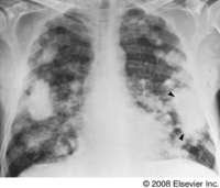 ON - RADIOLOGY: Caplan Syndrome (Coal worker's)