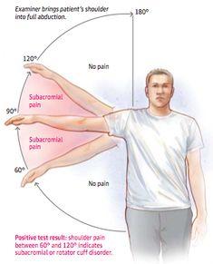 Drop Arm Test Sgem#74: broken arms (diagnosing rotator cuff disease) - foam ...