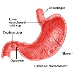 Herbal Remedies For Stomach Ulcers