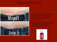 Frankincense Essential Oil on a c-section scar Just a drop or two...: Healing Scars with Frankincense Young Living Essential Oils Independent Distributor #1765174 www.justadroportwo.blogspot.com