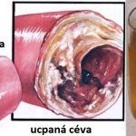 How to Clear Blocked Arteries with Natural Health Remedies - Everyday Remedy How To Eat Ginger, Clogged Arteries, Metabolic Diet, Lose Weight Naturally, Natural Health Remedies, Burn Belly Fat, Slim Body, Want To Lose Weight, Heart Disease