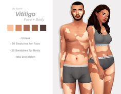 Explore these beautiful Sims 4 vitiligo skin. Unique birthmarks and overlays. Different options and tones for maxis match colors.