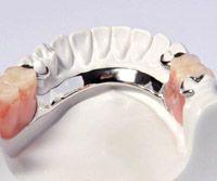 Chrome Based Partial Dentures    ~ Dental