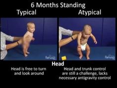 Watch this side by side development video series showing babies at 4 and 6 months old to compare their motor movements and see what typical and atypical motor development looks like. 6 Month Old Development, Physical Development, Child Development, Activities For Babies Under One, Sensory Activities Toddlers, Infant Activities, Child Nursing, 4 Month Old Baby, Pediatric Occupational Therapy