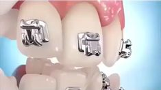 How dental braces work Orthodontic treatment with brackets, dental braces and elastics Dental Implant Procedure, Dental Procedures, Dental Implants, Dental Braces, Teeth Braces, Dental Surgery, Dental Life, Dental Art, Dental Health