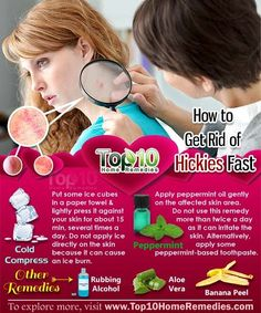 Quick way to remove a hickey