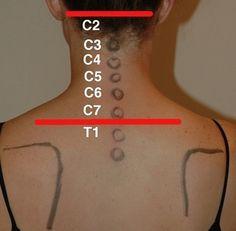 neckbone