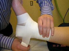 How to Tape an Ankle - Very Useful for Me!