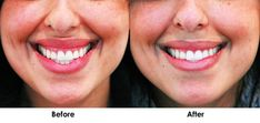 For people who are self-conscious about showing their gums every time they smile, there is a solution. A small amount of Botox can help hide the gums without changing the shape of your smile. What Causes Excessive Sweating, How To Reduce Sweating, Excessive Underarm Sweating, Botox Results, Botox Before And After, Botox Injections, Make Smile, Glass Skin, Tips