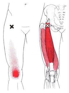 Gerader Oberschenkelmuskel | The Trigger Point & Referred Pain Guide