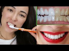COMO CLAREEI OS DENTES NA HORA,ELIMINE tártaros gengivite EM 3 MINUTOS - YouTube Spa Day, Youtube, Hair Beauty, Personal Care, Instagram, Nail Care Tips, Body Care, Nail Fungus Removal, Homemade Beauty Products