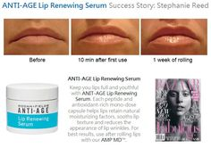 Rodan + Fields before & after. LIP RENEWING SERUM. www.cjewell.myrandf.com www.cjewell.myrandf.biz
