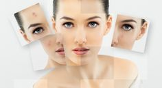 Make your own facial cleansing oil and homemade facial cleansing mask for acne prone skin.Opt facial cleansing routine for acne and choose best face cleanser for good results. Hormonal Acne, Dark Patches On Skin, Clear Skin Fast, Acne Treatment At Home, Acne Treatments, Scar Treatment, Vitiligo Treatment, Skin Whitening, Eyes
