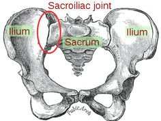 Sacroiliac dysfunction - how to treat it at home! These home remedies will help you beat the pain and be able to move pain free.