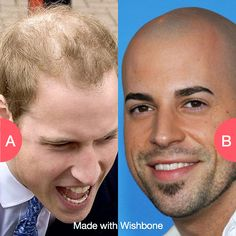 Should men hold onto balding head or just shave it off? Click here to vote @ http://getwishboneapp.com/share/4971277