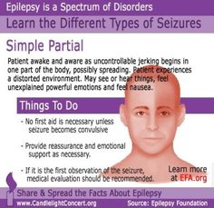 Breif Overview: Simple Partial Seizure