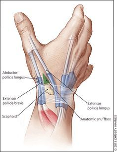 Evaluation and Diagnosis of Wrist Pain: A Case-Based Approach - American Family Physician