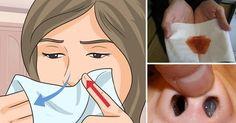Inainte de a va prezenta metode de curatare a nasului, pe care le putem folosi fiecare dintre noi acasa, va voi impartasi o experienta personala, pentru ca aud in jurul meu cum oamenii se confrunta cu dependenta de picaturi nazele si antialergice: - See more at: http://www.secretele.com/2016/04/cum-m-am-vindecat-de-afectiunile.html#sthash.L9TAvCbY.dpuf