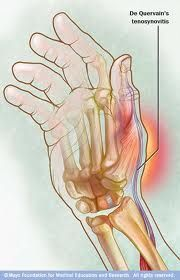 Physical Therapy DataBase: de Quervain's Tenosynovitis