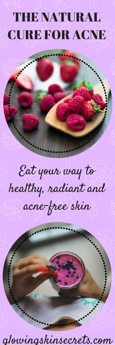 The natural cure for acne: Healthy diet