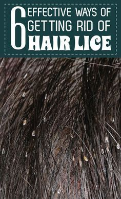 Being infected with Lice can be a big problem. The constant itching on the head is enough to drive...