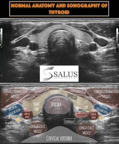 Thyroid Ultrasound, Ultrasound School, Ultrasound Sonography, Ultrasound Technician, Radiology Imaging, Interventional Radiology, Medicine Student, Medical Anatomy, Naruto Shoes