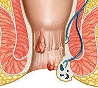 ماهي البواسير واعراضها وكيفية علاجها البواسير (Hemorrhoids) هي أوردة بارزة ومنتفخة (متورمة) في فتحة الشرج (Anus) وفي الجزء السفلي من المستقيم (Rectum). تتكون نتيجة لمجهود أثناء عمل الأمعاء أو نتيجة لضغط شديد على هذه الأوردة، كما يحدث في فترة الحمل، مثلا.