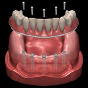 Hybrid Implant Denture here is showing how five implants are used to support a non-removable implant retained denture.  This denture relies on much less material, therefore it is less bulky and more comortable.  It also is immobile, which makes eating and speaking much easier.