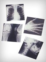 radiology tech, halloween parties, radiographi, life, cool science ideas