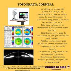 Clínica de Ojos Oftalmic Láser: TOPOGRAFÍA CORNEAL