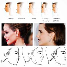 Ever thought about what shape your profile is? Probably the least favourite angle for the majority of people...the side- on profile! 😱  You have (broadly speaking) 5 shapes to choose from: 🔹convex, 🔹concave, 🔹plane, 🔹convex-concave, and 🔹concave-convex.  So which shape are you? And what's the optimal profile shape and how can we get it? #beauty #facialprofile #botoxandfillers #teaching #training #goldstandard #analysingfacialangles #beautyisintheeyeofthebeholder