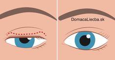 Ochabnuté či ovisnuté očné viečka nie sú len kozmetický problém, ale môžu brániť aj vo výhľade. Tu je návod, ako tento problém odstránite.
