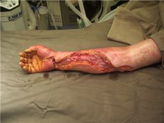 burn compartment syndrome