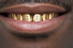 gold teeth Repin & Follow my pins for a FOLLOWBACK!