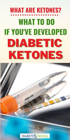 These days, understanding what ketones are can be confusing. In this article, we'll talk about the differences between diabetic ketones (ketoacidosis), starvation ketones, and nutritional ketosis. We'll cover what to do if you've developed diabetic ketones and how to manage ketones and diabetes during an illness. #ketones #diabetes #managingdiabetes #diabetestips #diabetesstrong #diabeticketones #ketoacidosis #ketosis