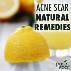 Natural Acne Scar Remedies: Egg Whites, Baking Soda & Lemon Juice