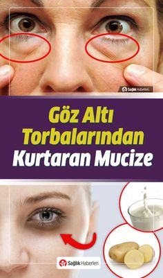 Get Rid Of Under Eye Bags With Simple And Natural Methods!- Göz Altı Torbalarından Basit ve Doğal Yöntemlerle Kurtulun! How to get rid of under-eye bags naturally, what should be done? What& good for under-eye bags? We searched for you. Underarm Hair Removal, Skin Tag Removal, Hair Removal Cream, Brown Spots On Face, Under Eye Bags, Unwanted Hair, Homemade Skin Care, Hair Health, Beauty Hacks