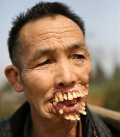 """""""In Guizhou, China, a man has a bizarre facial anomaly. When he was he was licked in the face by a wolf and was supposedly infected by something, causing his facial disfigurement over time."""