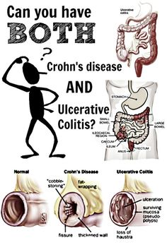 Can you have both Crohn's disease AND ulcerative colitis? Find out in this informative post backed by some of the nations top IBD specialists.