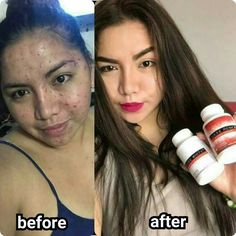this board shows how frontrow luxxe products change their life after using it. Acne Marks, Vegetable Protein, Skin Problems, Freckles, Lunges, Front Row, Health Benefits, Soap