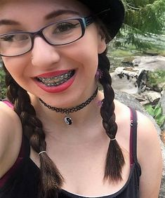 Cute Girls With Braces, Cute Braces, Girls With Glasses, Tween, Nerdy, Girl Fashion, Chokers, Beautiful, Dental Braces